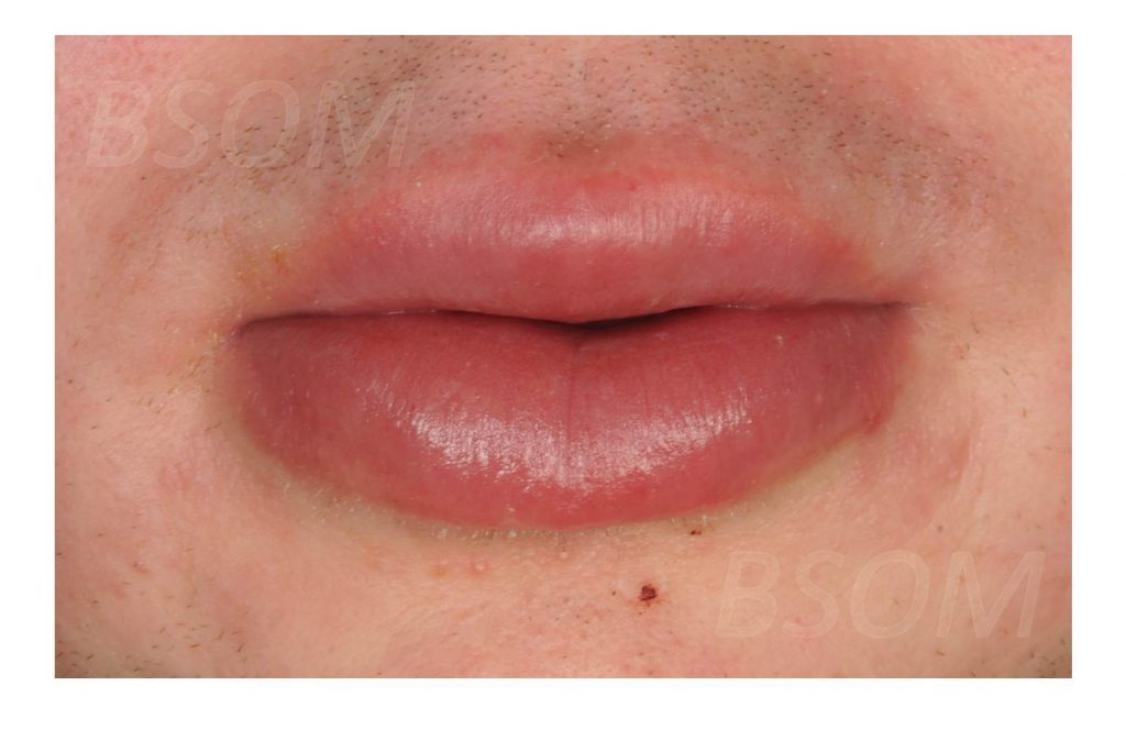 Mouth Ulcers and Lip Swelling