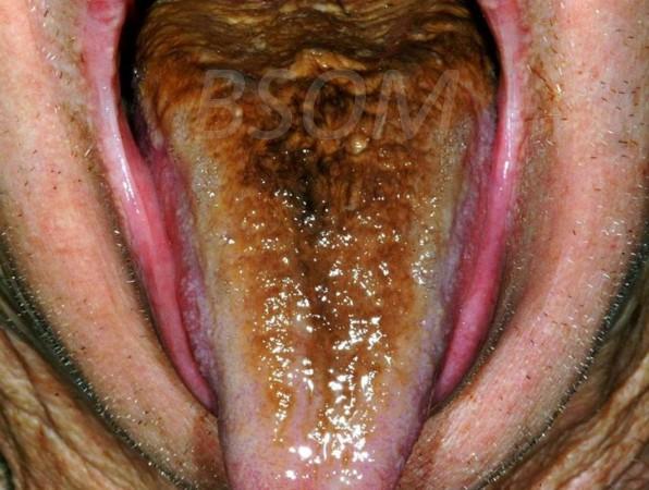 Black Tongue