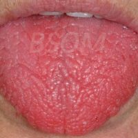 Dry Mouth – Sjogren's Syndrome