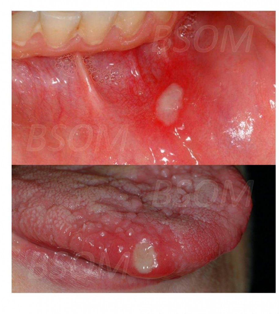 Recurrent Mouth Ulcers